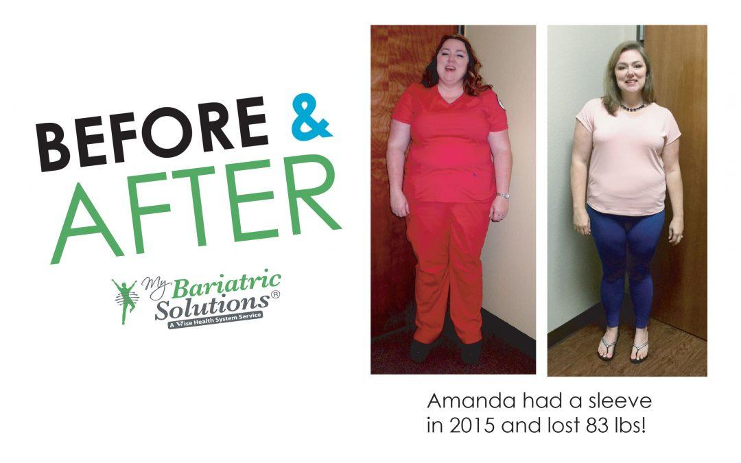 Amanda – Weight Loss