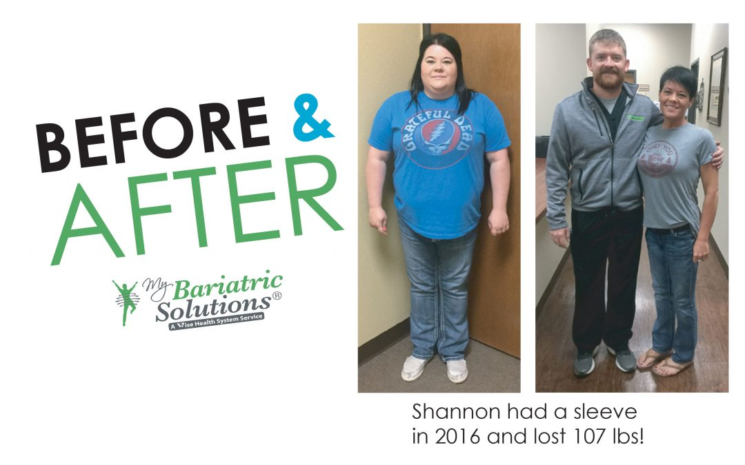 Shannon – Weight Loss