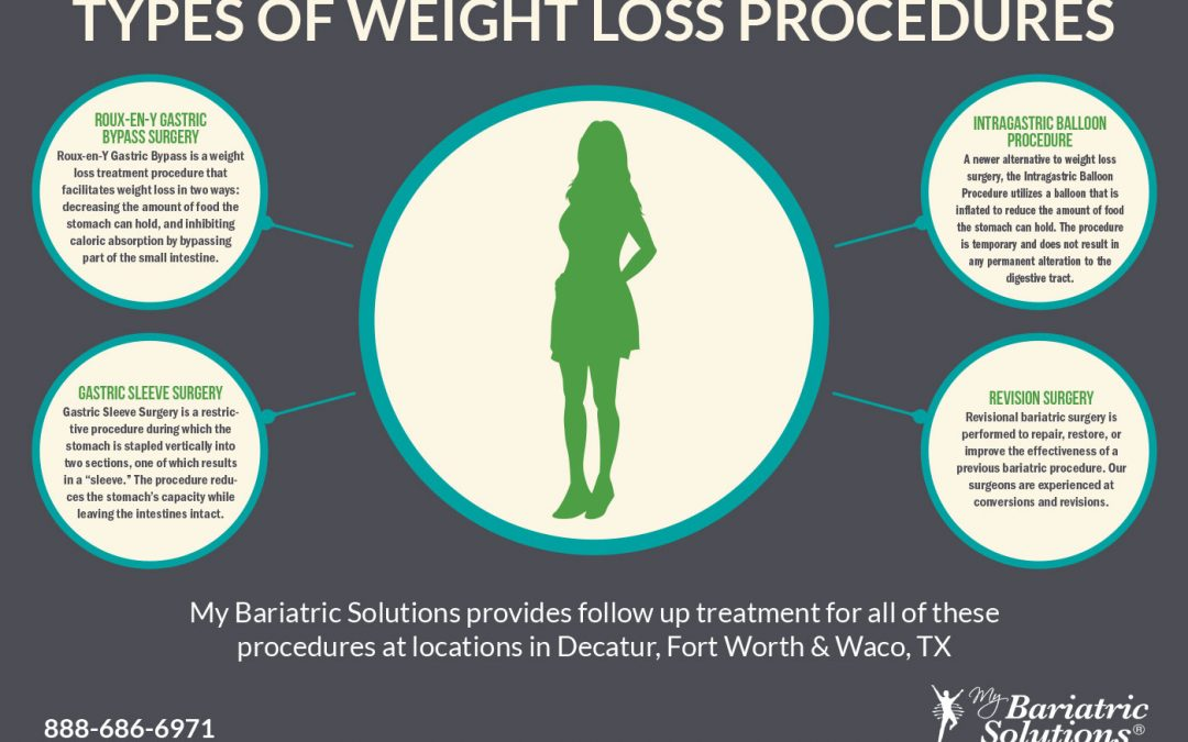 Types of Weight Loss Procedures